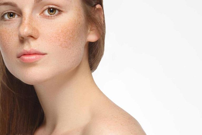 Nám, tàn nhang là biểu hiện của các hắc tố xuất hiện trên bề mặt da