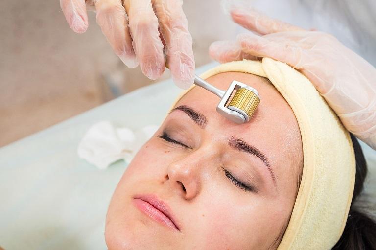 Lăn kim là một trong những liệu pháp trị sẹo rỗ đầu tiên được đưa vào ứng dụng rộng rãi tại các spa