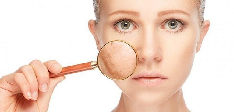Một liệu trình điều trị sẹo rỗ do nó còn bị ảnh hưởng bởi nhiều yếu tố