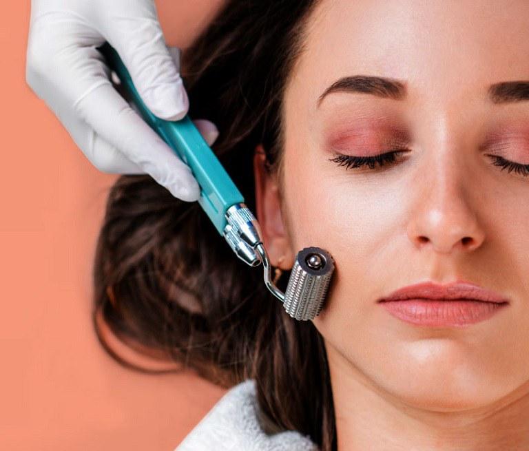 Phương pháp lăn kim trị mụn áp dụng con lăn với hàng ngàn mũi kim nhỏ lăn qua da