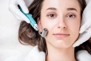 [Review] Công nghệ lăn kim trị sẹo rỗ có hiệu quả như lời đồn?