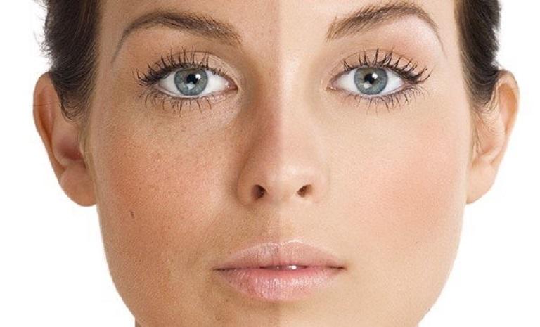 Sắc tố da của bạn có thể bị ảnh hưởng đến thực hiện phi kim không đúng kỹ thuật