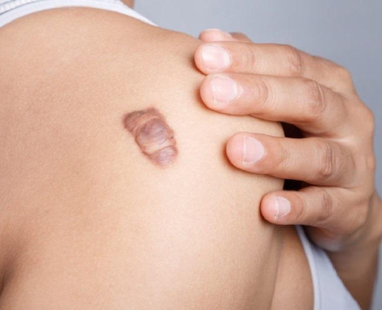Sẹo lồi là những vết sẹo phát triển vượt lên hẳn so với các vùng da xung quanh, da thường