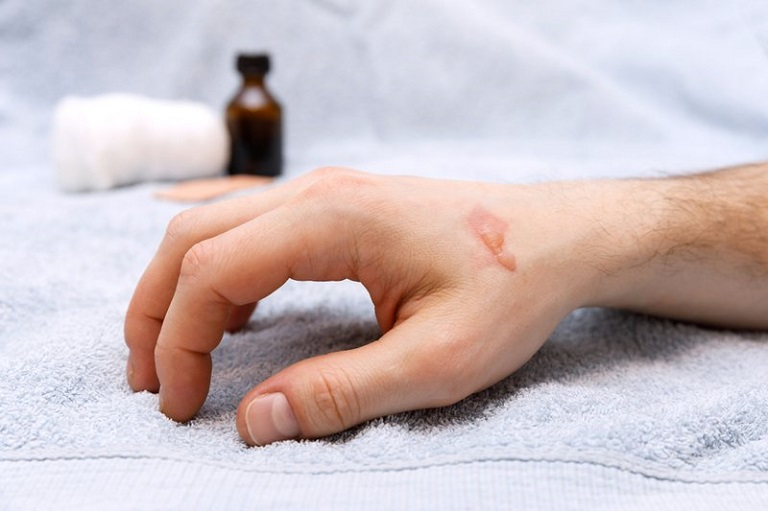 Các vết sẹo bỏng được hình thành do làn da tiếp xúc trực tiếp với vật nóng