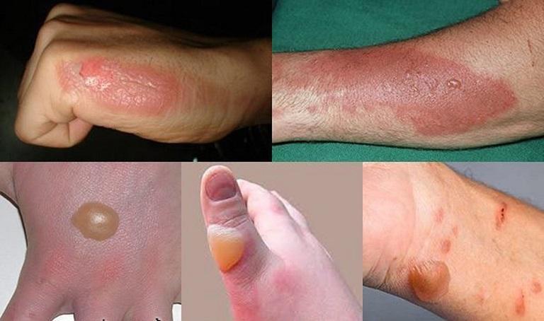 Các vết sẹo phỏng sẽ trở nên nghiêm trọng nếu không được điều trị kịp thời