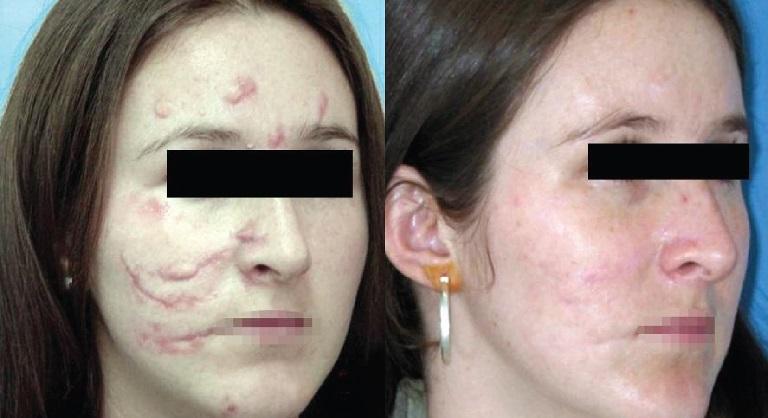 Công nghệ Laser giúp xóa mờ cả những vết sẹo phỏng nghiêm trọng nhất