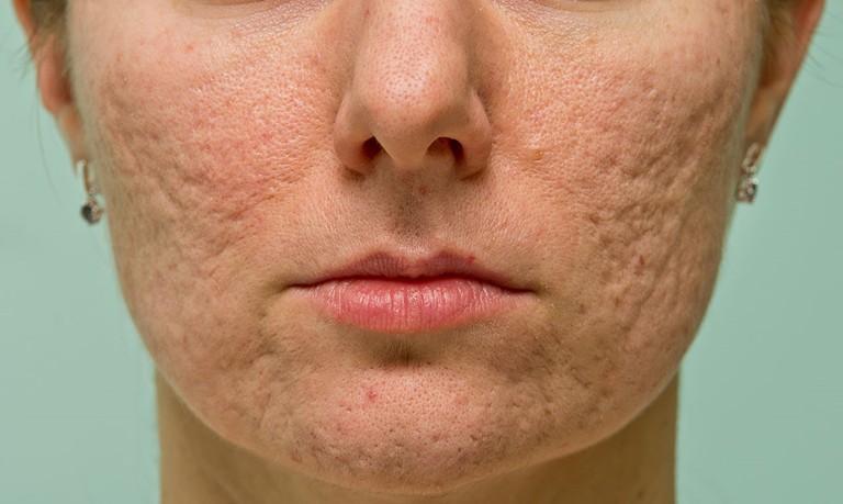 Sẹo lõm là những vết lõm xuất hiện sâu dưới da, có hình dạng, kích thước khác nhau