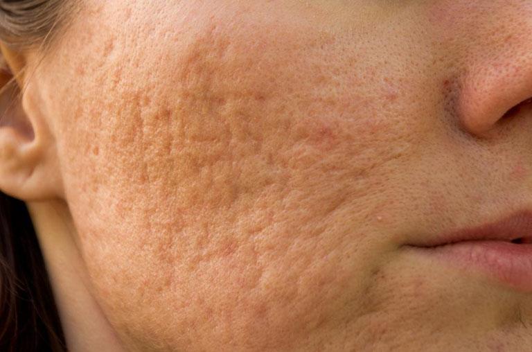 Có rất nhiều nguyên nhân hình thành sẹo lõm trên mặt