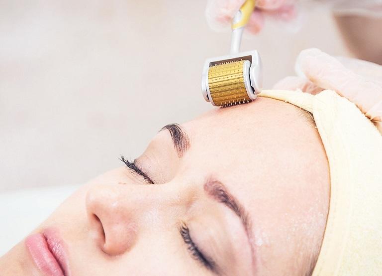 Điều trị sẹo lõm bán xâm lấn bằng phương pháp lăn kim PRP