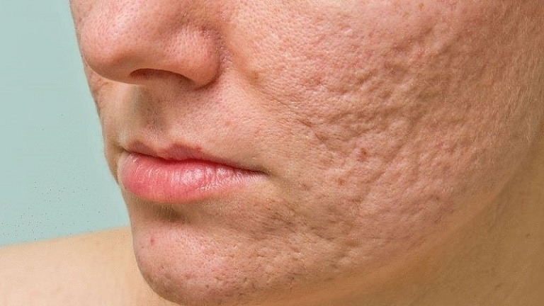 Sẹo được hình thành sau khi các nốt mụn trên mặt được xử lý không đúng cách