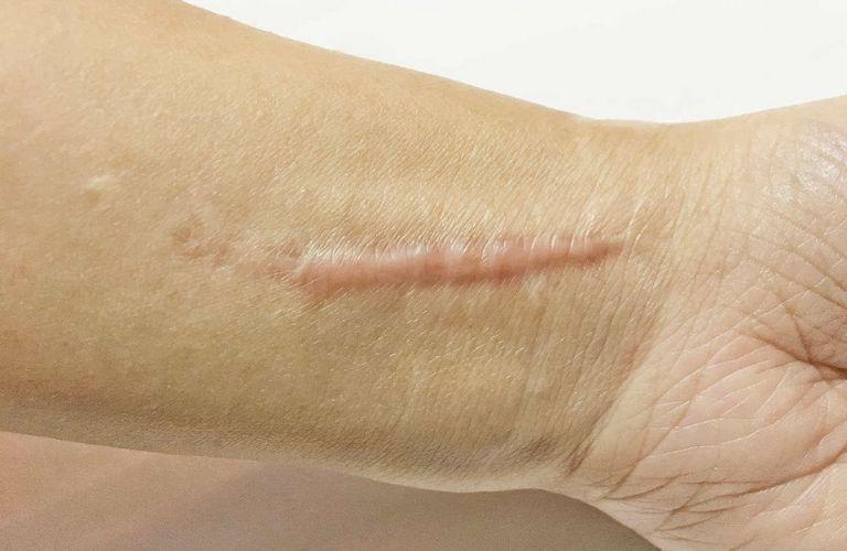 Phương pháp điều trị sẹo phì đại nhanh chóng