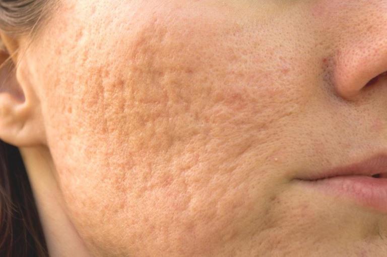 Sẹo rỗ là vấn đề gây ám ảnh đối với nhiều người