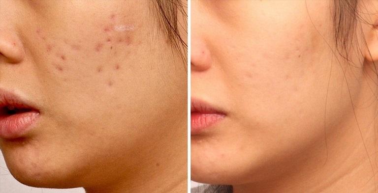 Có rất nhiều phương pháp được áp dụng trong điều trị sẹo