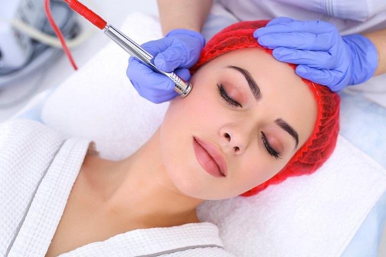 Điều trị sẹo rỗ bằng phương pháp mài da Dermabrasion