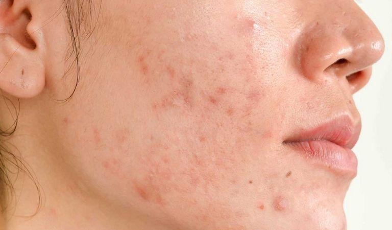 Sẹo thâm trên mặt có thể điều trị bằng phương pháp Laser