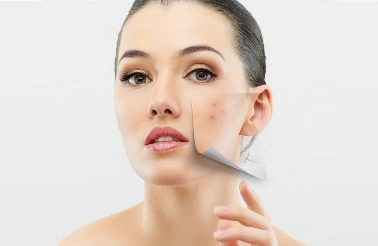 Một số cách phòng ngừa sẹo thâm hiệu quả