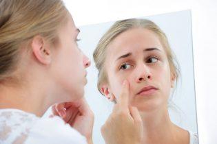 Sẹo thâm đỏ: Nguyên nhân hình thành và các phương pháp điều trị