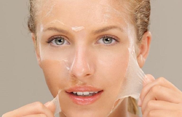 Peel da hóa học là công nghệ xóa sẹo khá phổ biến hiện nay
