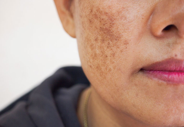 Công nghệ PRP thích hợp với những đối tượng bị nám do di truyền, tăng sắc tố da