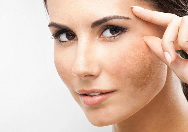 Trị nám bằng laser tiềm ẩn nguy cơ bị mất sắc tố da vĩnh viễn