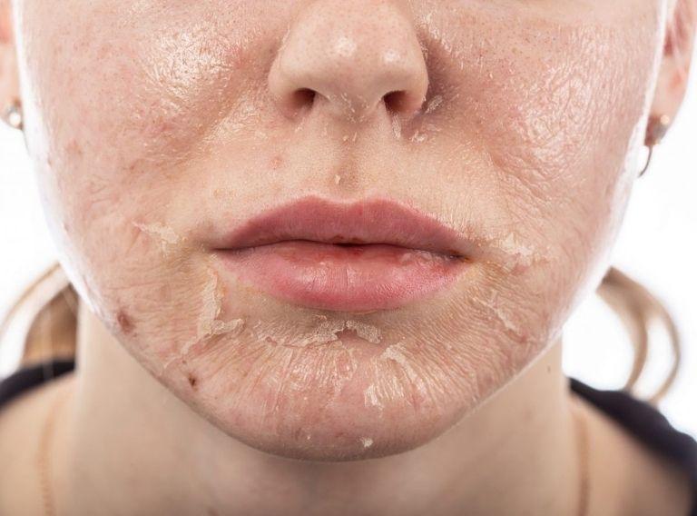Chemical Peels trị nám không để lại sẹo và khá an toàn với da