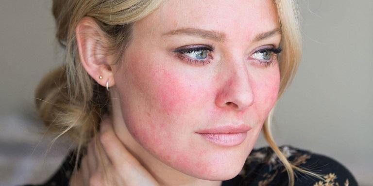 Bạn có thể gặp phải hiện tượng đỏ da kèm nóng rát nếu không được điều trị cẩn thận
