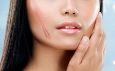 Sẹo lồi gây ảnh hưởng thẩm mỹ, nên sớm được điều trị