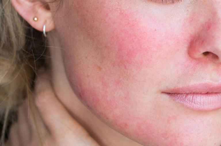 Làn da có thể bị tổn thương sau khi cắt đáy sẹo