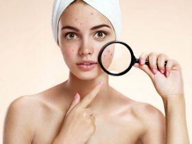 Viêm da mụn trứng cá là gì? Cách điều trị và chăm sóc da tại nhà